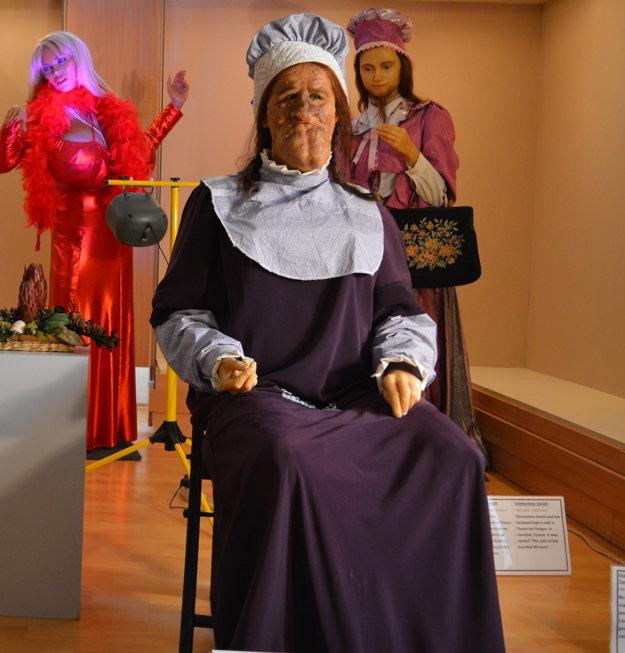Grace McDaniels sa preslávila ako žena stvárou mulice. Trpela Sturge-Weberovým syndrómom.