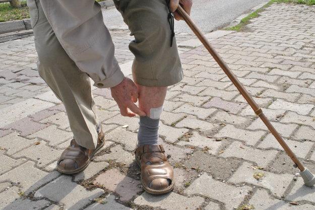 Zranenia. Dôchodca utrpel odreniny na oboch nohách.