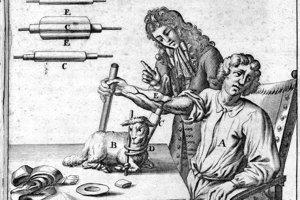 Prvú transfúziu dostal človek 15. júna 1667.