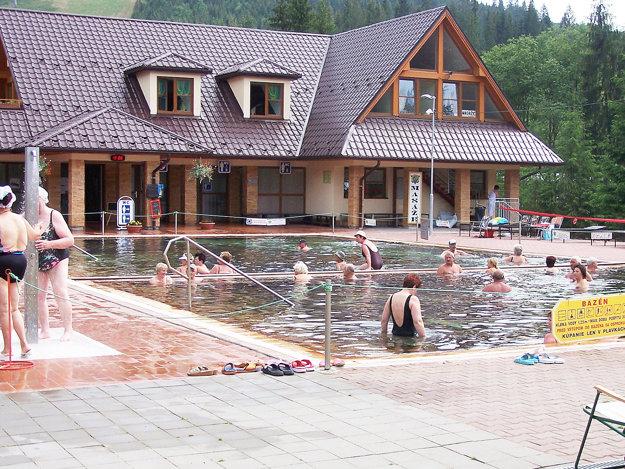 Podľa aktuálnych rozborov vody vyhovuje na kúpanie aj tá voravických bazénoch.