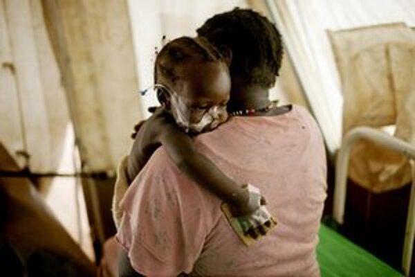 Podvyživené juhosudánske dieťa.