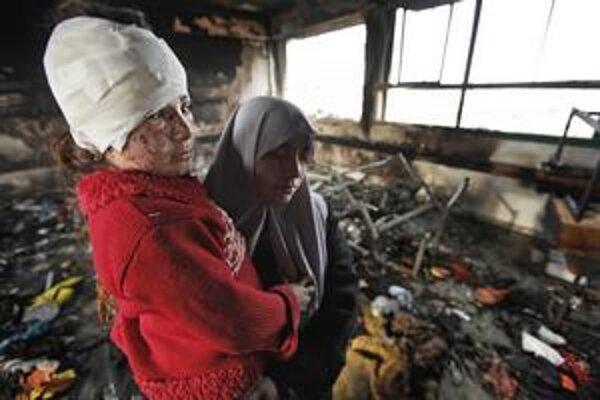Izrael je najviac kritizovaný za používanie fosforových zbraní. Podľa matky bola počas vojny popálená touto látkou aj malá Fatma.