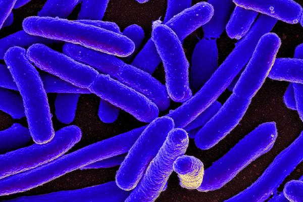 Baktérie E. Coli slúžili ako základ nového druhu, ktorý možno sledovať ultrazvukom