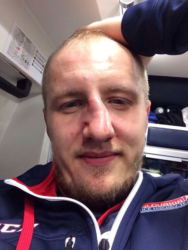Zlomený Pulišov nos.