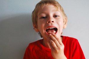 Genetika vplýva na zuby iba čiastočne.
