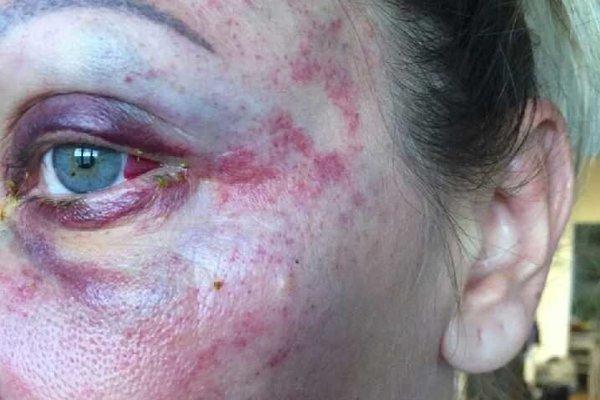 Zbitá žena utrpela rozsiahle zranenia.
