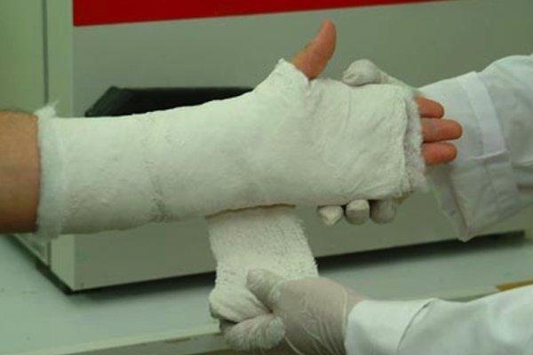 Žena si zrejme zlomila zápästie.