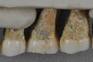 Horné zuby jedinca nového druhu Homo luzonensis. Zľava sú dva črenové zuby a tri stoličky. Pohľad spredu.