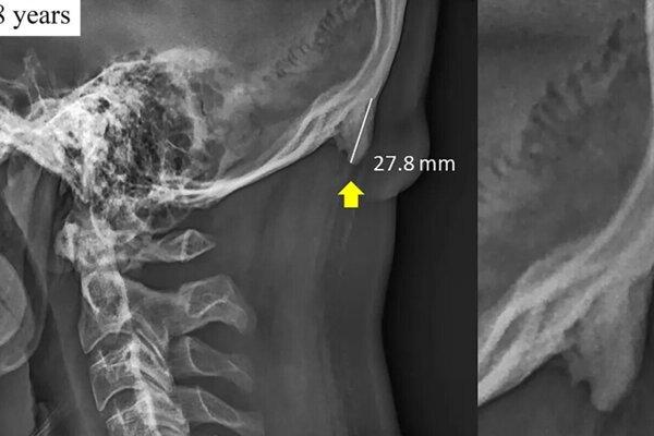 Snímka 28-ročného pacienta, ktorá zachytáva výrastok na záhlavovej kosti.