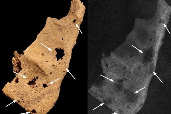 Kosti prederavené nádormi.