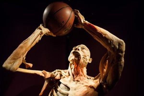 Svaly aj šľachy, kosti či tkanivá. Aj taká je výstava o ľudskom tele.