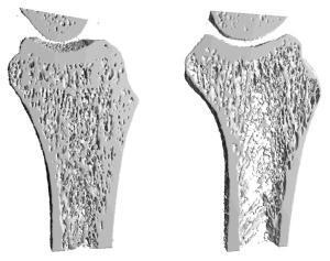 osteoporoza_03_mensia.jpg