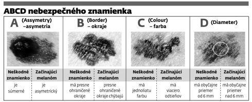 melanom1.jpg