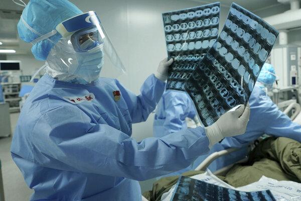 Zdravotník sa pozerá na CT vyšetrenie v nemocnici 17. marca 2020 v čínskom meste Wu-chan. Čína vo štvrtok 19. marca nehlásila po prvý raz žiadne nové domáce prípady nákazy koronavírusom, odkedy ich začala v januári zaznamenávať.