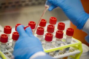 Počet prípadov nového koronavírusu stúpa.