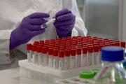 Testovanie vzoriek na ochorenie COVID-19.