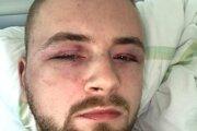 Jakub mal po príchode do nemocnice niekoľko vážnych zlomenín.