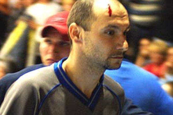 So zakrvaveným čelom odchádzal inzultovaný rozhodca Karniš do šatne.