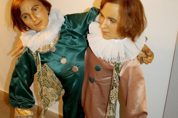Výstava predstavuje aj siamské dvojčatá.