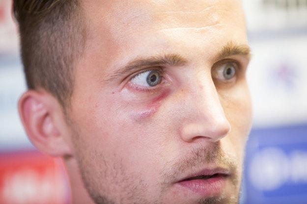 Peter Pekarík má po zápase s Anglickom monokel pod pravým okom.