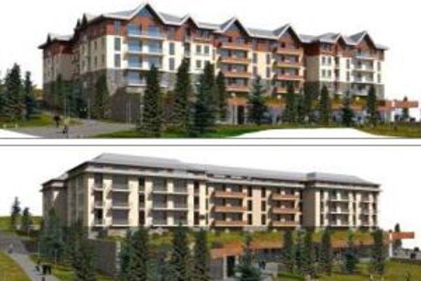Dva možné varianty budúceho hotela.