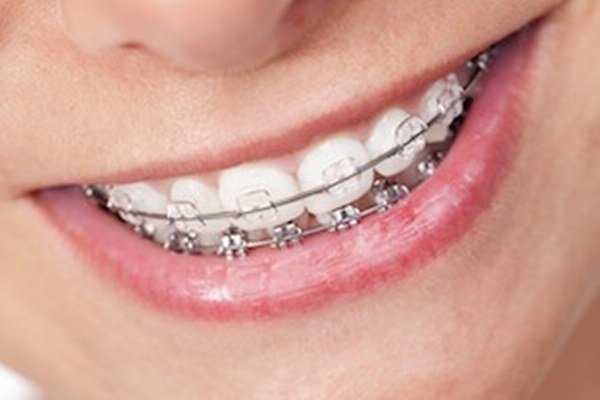 Na vzniku parodontitídy sa môžu podieľať rôzne faktory, napríklad aj zle urobené zubné náhrady, ortodontické strojčeky a pod.