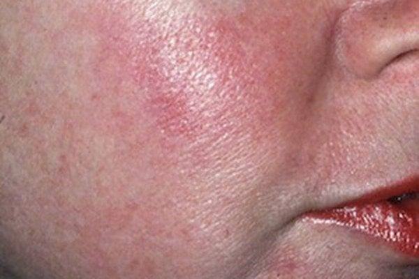 Rosacea - subtyp 1 sa prejavuje trvalým začervenaním tváre.