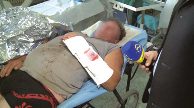 Kysučan sa po napadnutí medveďom dostal do rúk chirurgov.