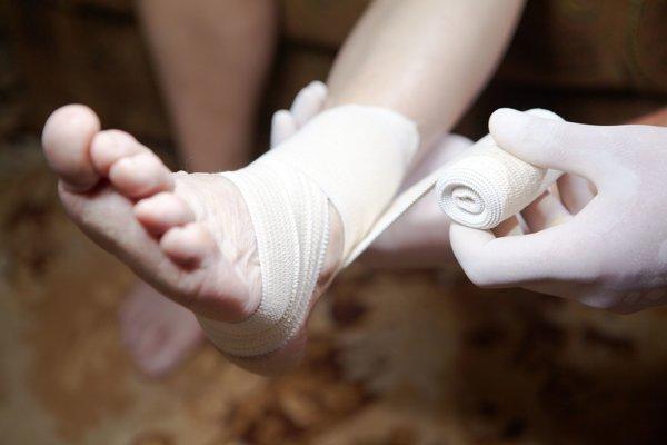 Jednou z najväčších hrozieb cukrovky je diabetická noha, v dôsledku ktorej môže prísť človek o dolnú končatinu.