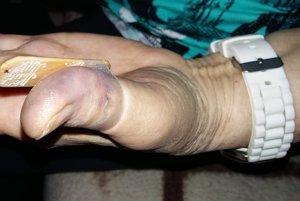 Dôchodkyňa skončila so zlomenou kostičkou na ruke.