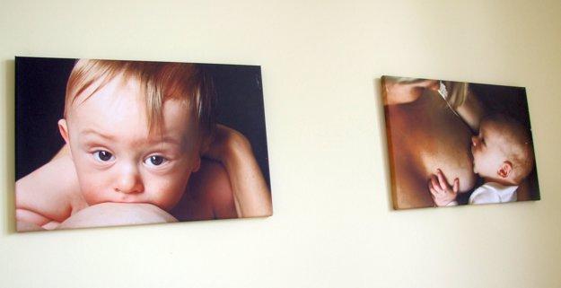 Fotografie boli vystavené vo viacerých mestách, v nitrianskej nemocnici zostanú.