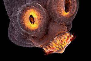Štvrté miesto: Hlavička ľudského parazita pásomnice dlhočlánkovej.
