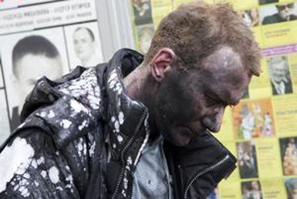 Desiatky ľudí, ktorí sa zranili pri teroristických útokoch, rozviezli do nemocníc po celej Moskve.