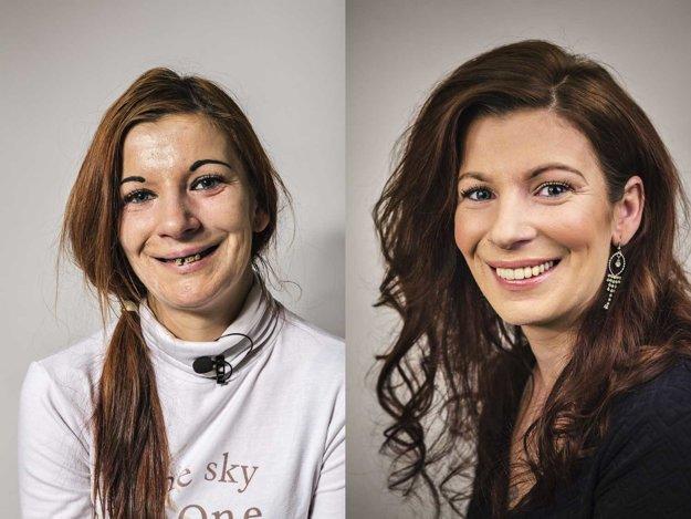 Ako si s paradontitídou poradila pani Zuzana? Mladá žena, s ktorou sa osud nemaznal? Špecialisti zo Schill Dental Clinic jej pomocou implantátov vyčarili krásny úsmev.