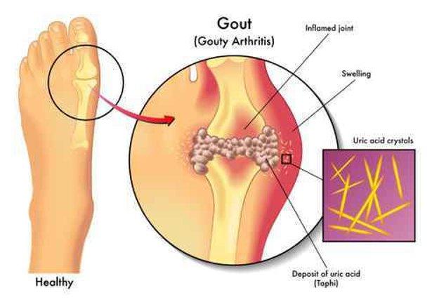 Kĺb opuchne, dostane červenú až fialovú či modrastú farbu a stane sa mimoriadne bolestivým.