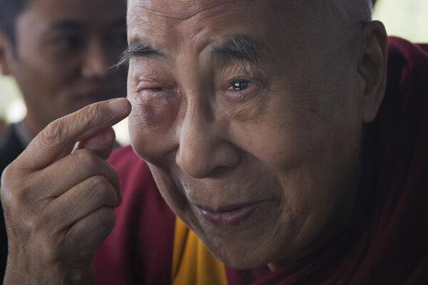 Dalajláma sa sťažoval na menší opuch oka.