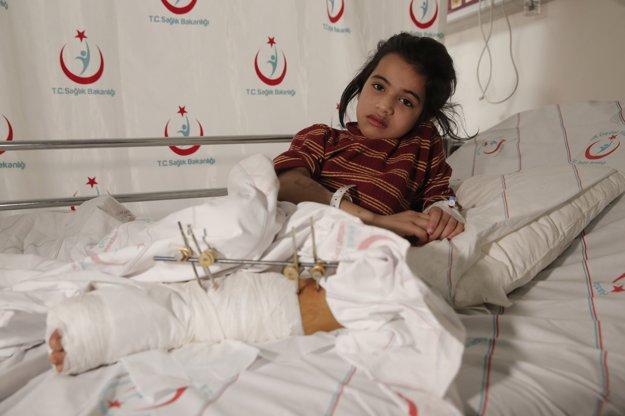 Zranené šesťročné dievčatko Aya Sharqawiová leži v nemocnici v tureckom meste Kilis.