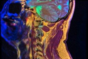 Záber krčnej chrbtice magnetickou rezonanciou farebne odlišuje rozličné typy tkanív. Zreteľné sú stvce, mozog, ale aj pokožka.