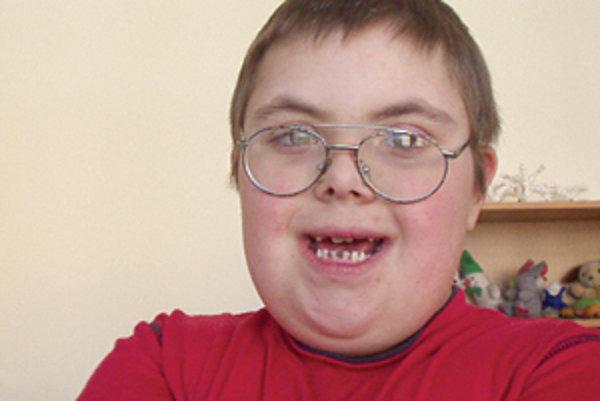 Janko s downovým syndrómom je veľmi milý chlapec.