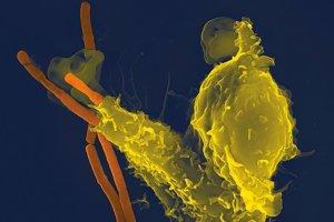 Špeciálna imunitná bunka, neutrofil (žltou), pohlcuje baktériu bacillus anthracis. V novom výskume vedci zistili, že neutrofily do mozgu putujú cez drobné kanáliky.