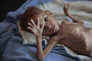 Vyhladované dieťa v Jemene.