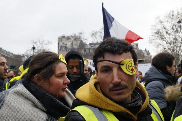 Francúzi znova protestujú.