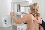 Mamograf pomáha odhaľovať karcinómy prsníkov.