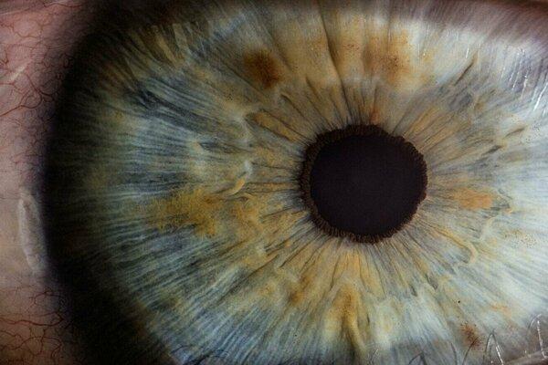 Oční lekári v Taiwane zažili sériu prekvapivých prípadov.