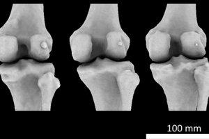 Tri kolená s tromi rôzne veľkými fabelami - na obrázku drobná kosť v pravej časti kolena, ktorá ma kruhovitý tvar a bledšiu farbu.
