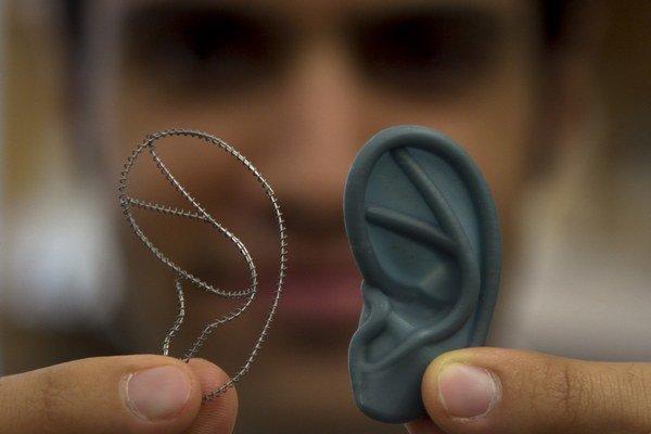 Vedci hľadajú spôsoby, ako vypestovať ľuďom bezpečné orgány. ⋌ILUSTRAČNÉ FOTO – SITA/AP