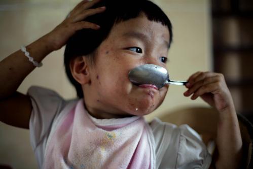 deti-aids-vietnam5_sitaap.jpg