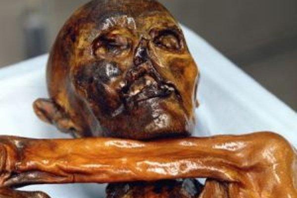 Detail na múmiu Ötziho v bolzanskom archeologickom múzeu. Teraz čakáme na Schnidiho.