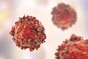 Ilustrácia bielej krvinky pacienta s leukémiou.