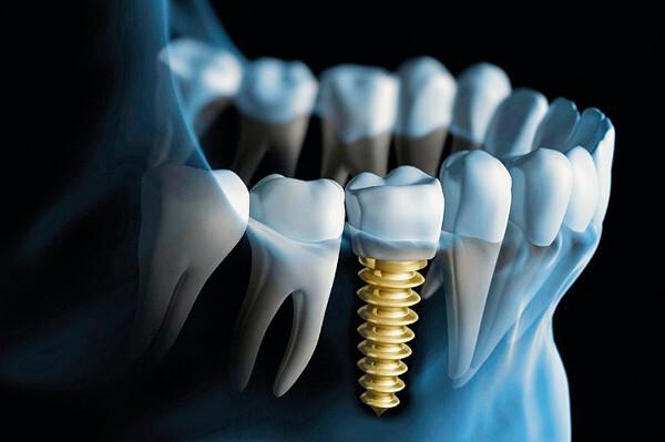 implantaty-technologie-schill-web-720px.jpg